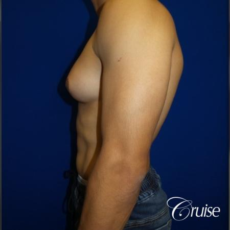 gynecomastia photos of an adult with overdeveloped breast - Before and After Image 3
