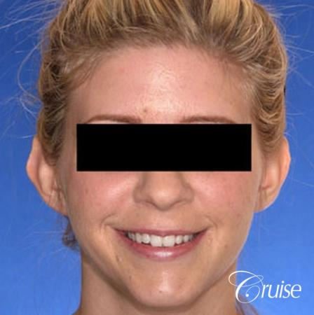 best otoplasty photos by top plastic surgeon - Before Image 1