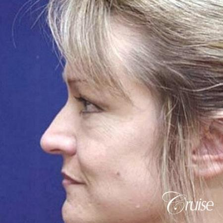 Fat Transfer - Tear Tough, Lower-Lids - Before and After Image 2