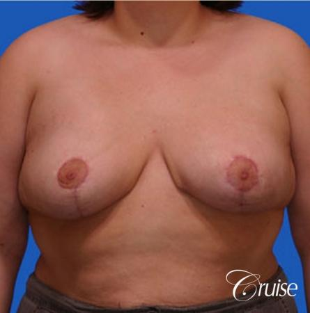 breast reduction surgery on large breast -  After Image 1