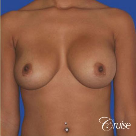 best pictures of ruptured implant breast revision - Before 1