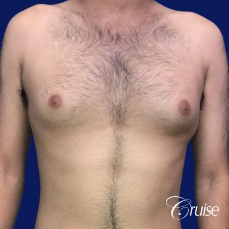Moderate Gynecomastia Areola Incision - Before Image 1