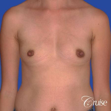 Breast Augmentation: Patient 42 - Before Image 1