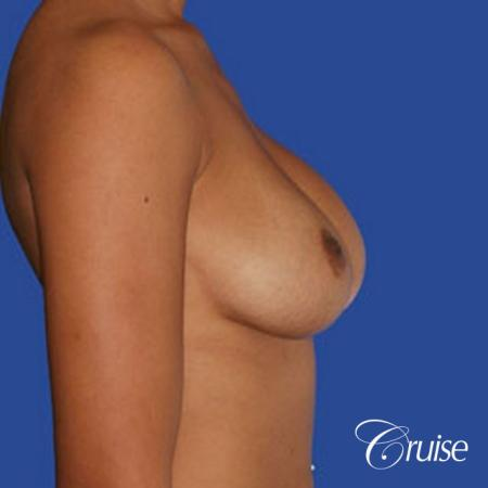 best pictures of ruptured implant breast revision - Before Image 2
