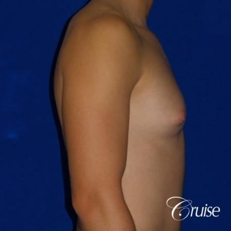 Teenage Gynecomastia -Areola Incision - Before Image 3