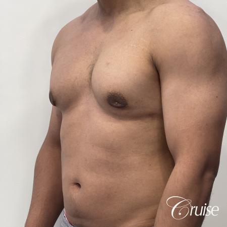 gynecomastia surgery -  After 3