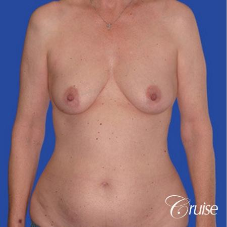 low mini tummy tuck with D cup  breast augmentation - Before Image 1