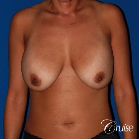 unhappy with her shape she had a breast revsion and lift - Before Image 1