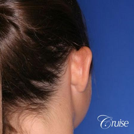 best otoplasty pictures on adolescent child teen - Before Image 2
