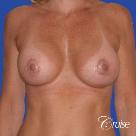 breast lift anchor with silicone implants on adult -  After Image 1