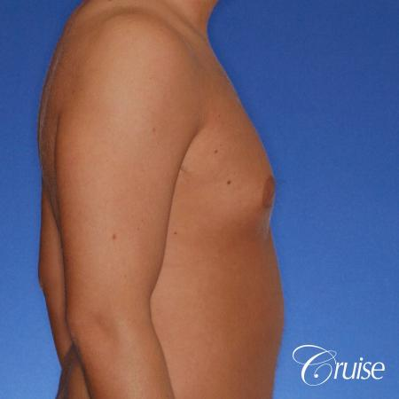 best puffy nipple gynecomastia results with plastic surgeon, Joseph Cruise, M.D. - Before Image 3