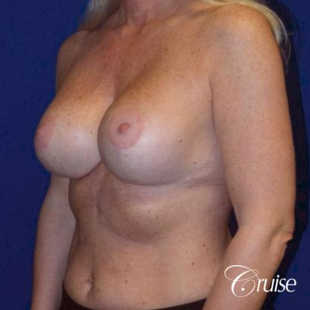 best breast lift with implants - After Image 2