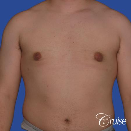best scars for moderate gynecomastia -  After Image 1
