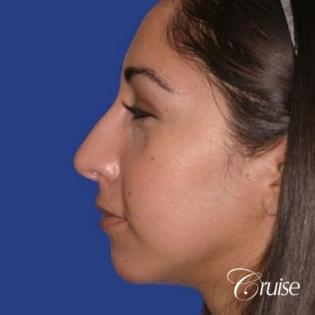 anatomic chin implant with top plastic surgeon in Newport Beach -  After Image 2