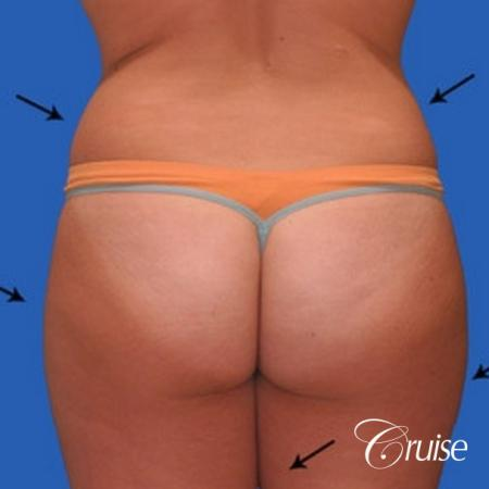best liposuction results on abdomen, flanks, thighs - Before Image 2