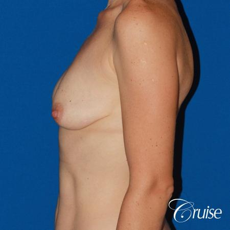 young woman with silicone breast lift anchor - Before Image 2