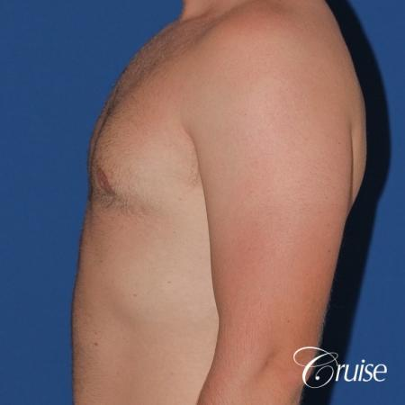 best puffy nipple surgery correction -  After Image 2