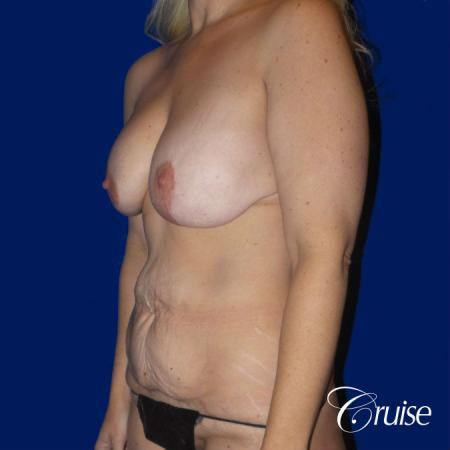 Circumferential Tummy Tuck, Breast Lift Anchor W/ Silicone - Before Image 2