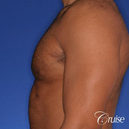 26 yo athletic patient with moderate gynecomastia -  After Image 2