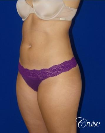 Liposuction -  Flanks - After Image 2