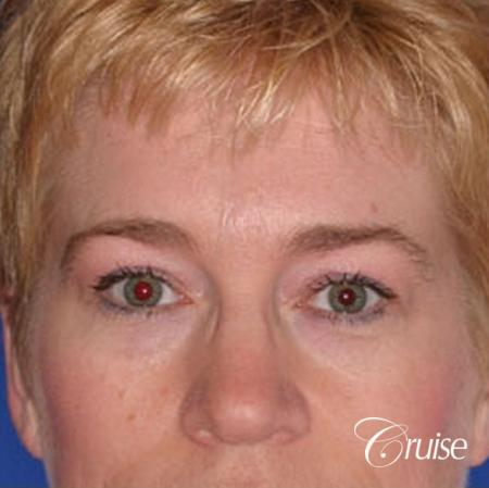 best specialist for upper eyelid surgery - Before Image