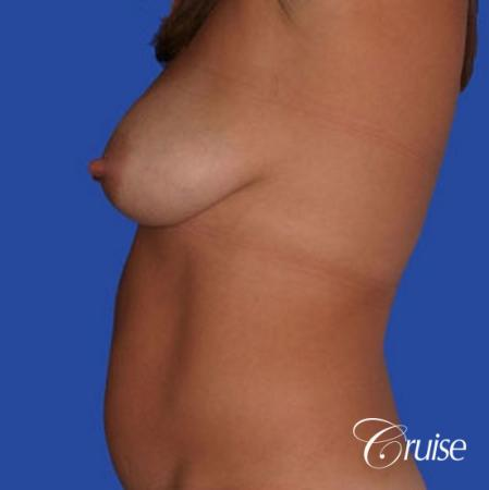 photos of best breast lift anchor with saline implants in Newport Beach - Before Image 2