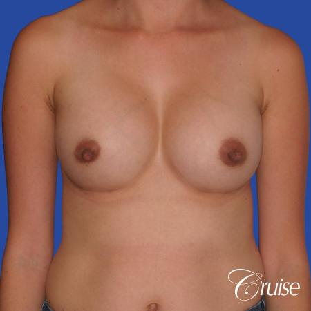 Breast Augmentation: Patient 42 - After Image 1