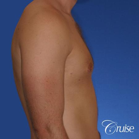young adult with puffy nipple gets the best results with top gynecomastia surgeon -  After Image 2