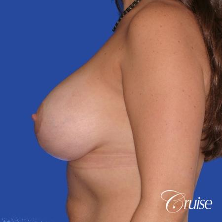 best results for breast lift surgeon in Newport Beach -  After Image 2