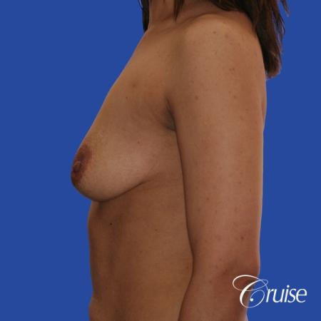 best scars for  breast lift anchor saline in Newport Beach, Orange County - Before Image 2