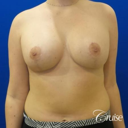 silicone implants with breast lift anchor newport beach -  After Image 1