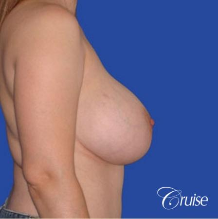 best revision Breast Lift with saline implants - Before Image 2