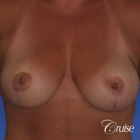 best breast lift and reduction with plastic surgeon in Newport Beach -  After Image 1