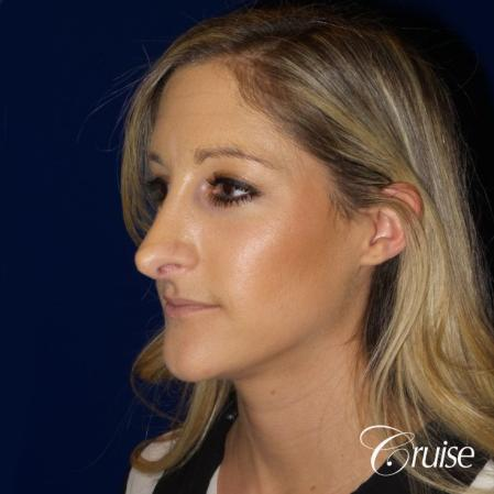 Best Rhinoplasty results Newport Beach CA - Before Image 3
