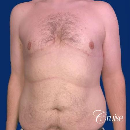 Pedicle incision Dr. Cruise Newport Beach CA -  After Image 1