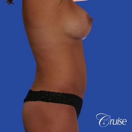 mommy makeover with best breast lift anchor with saline implants -  After Image 3