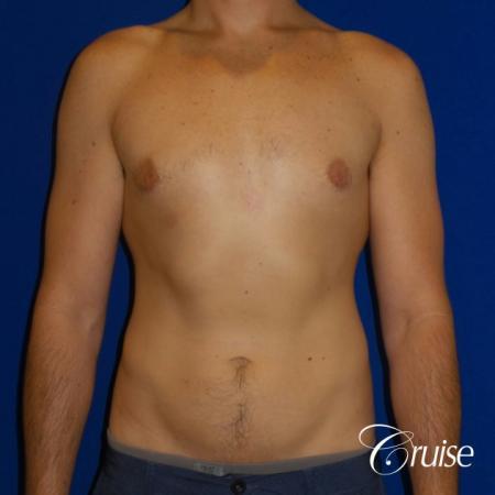 Mild Gynecomastia- Areola Incision - After Image 1