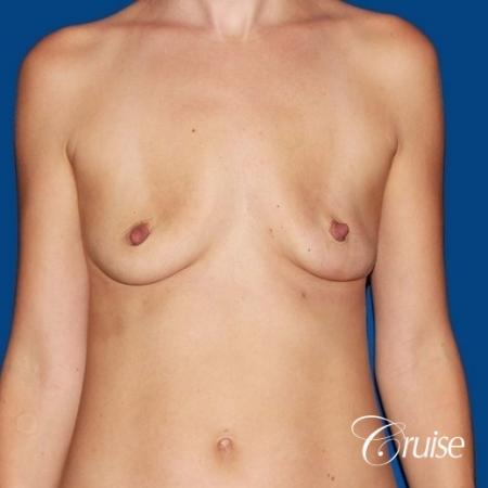 best breast lift anchor with High profile silicone 500cc implants - Before 1