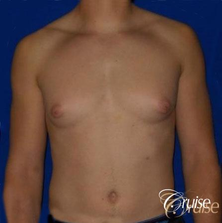 Teenage Gynecomastia -Areola Incision - Before Image 1