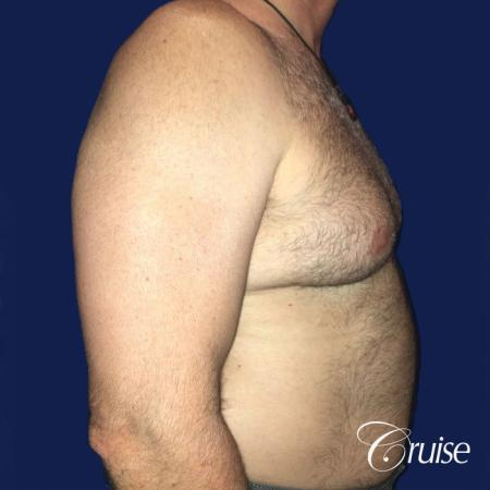 Severe Gynecomastia Correction - Before and After 3