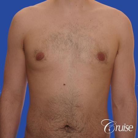 20 year old with moderate gynecomastia - After Image 1