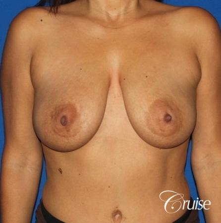 best saline breast lift with 470cc implants - Before Image 1