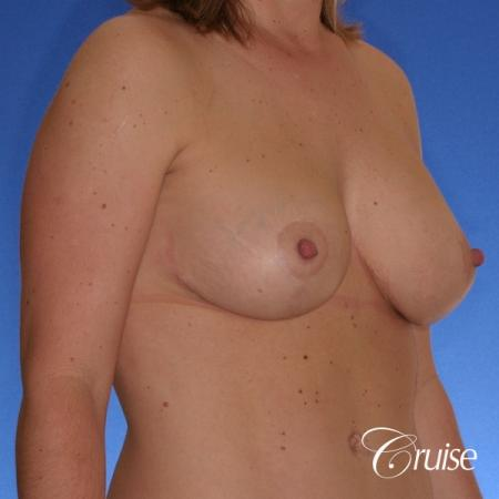 best breast lift anchor with silicone implants on 40 year old woman -  After Image 3