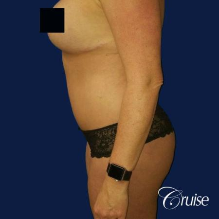 Best tummy tucks dr cruise - After Image 2