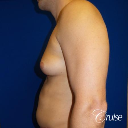Unilateral gynecomastia condition photos - Before and After Image 3
