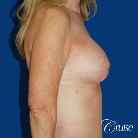 62 yr old woman with breast lift anchor and silicone implants -  After 2