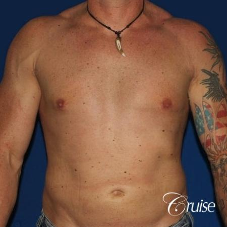 moderate gynecomastia with puffy nipple on athletic adult -  After Image 1