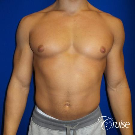 bodybuilder with gynecomastia - Before 1