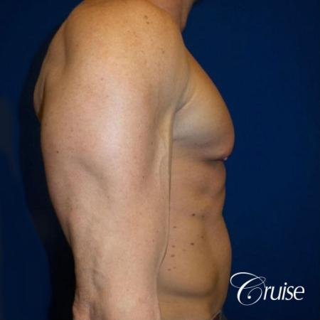 Gynecomastia before and after pictures - Before and After Image 2