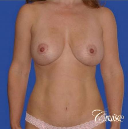 best breast revision tummy tuck mommy make over -  After Image 1